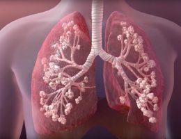 Koronavirüs sürecinde Kistik Fibrozis hastaları büyük risk altında!